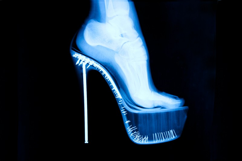 X-Ray Foot by Tyler Shields